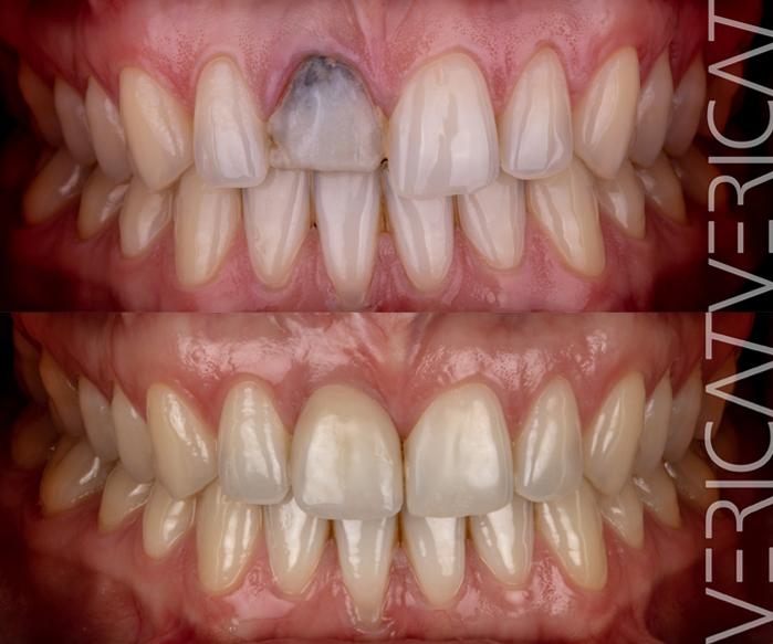 antes-despues-recuperacion-estetica-dental-1-dia